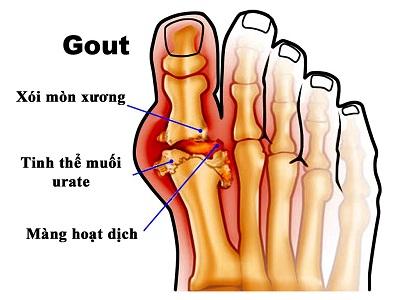 Hình ảnh axit uric tồn tại ở khớp xương ngón chân cái do mắc bệnh gút