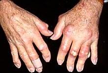 Biến chứng nguy hiểm của gút là gây thương tật, biến dạng khớp xương