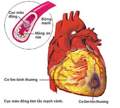 Cao huyết áp ở người bệnh