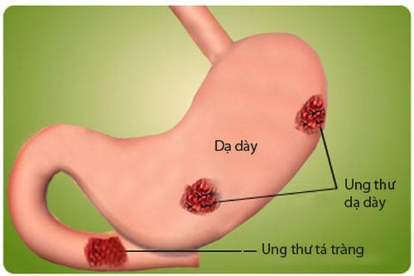 Ung thư dạ dày nguyên nhân, triệu chứng và giải pháp hỗ trợ điều trị