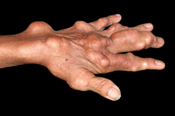 Các hạt tophi hình hành do gút gây biến dạng khớp xương