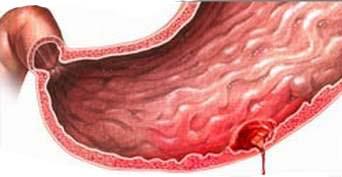 biểu hiện của xuất huyết dạ dày