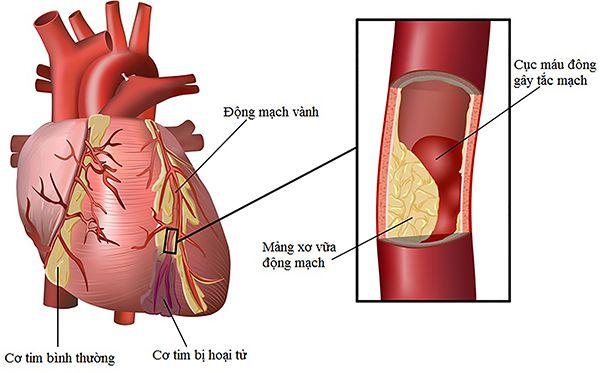 Mỡ máu cao chính là nguyên nhân gây ra cao huyết áp
