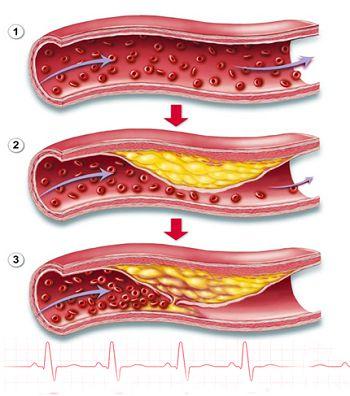 Biểu hiện ở tổn thương chân cho thấy bạn bị mỡ máu cao