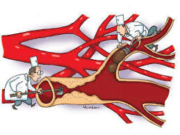 Khai thông mỡ máu sẽ là cách phong cao huyết áp hiệu quả