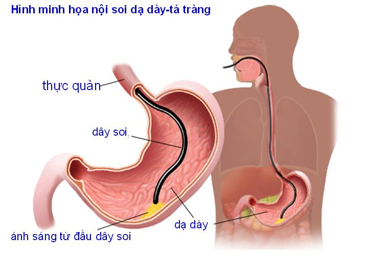 đau dạ dày là gì
