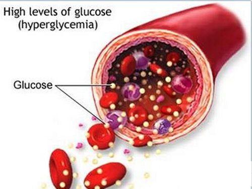 Bệnh tiểu đường nên ăn gì để chữa khỏi