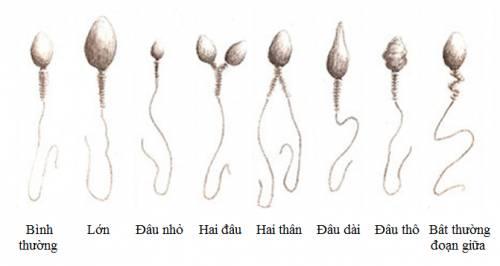 tinh trùng loãng  và một số cách nhận biết
