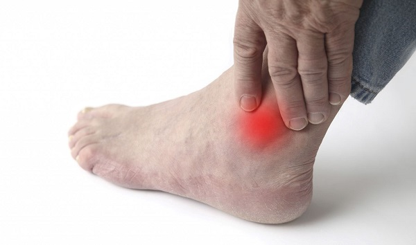 Triệu chứng của bệnh Gút là sưng đỏ, đau buốt tại các khớp xương