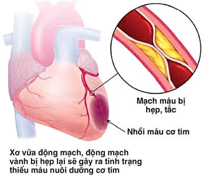 Sơ cúng động mạch