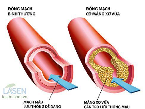xơ vữa động mạch cản trở lưu thông máu