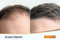 Người dùng trước và sau khi sử dụng sản phẩm Zhair Cream